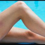 Five steps to hide Varicose Veins