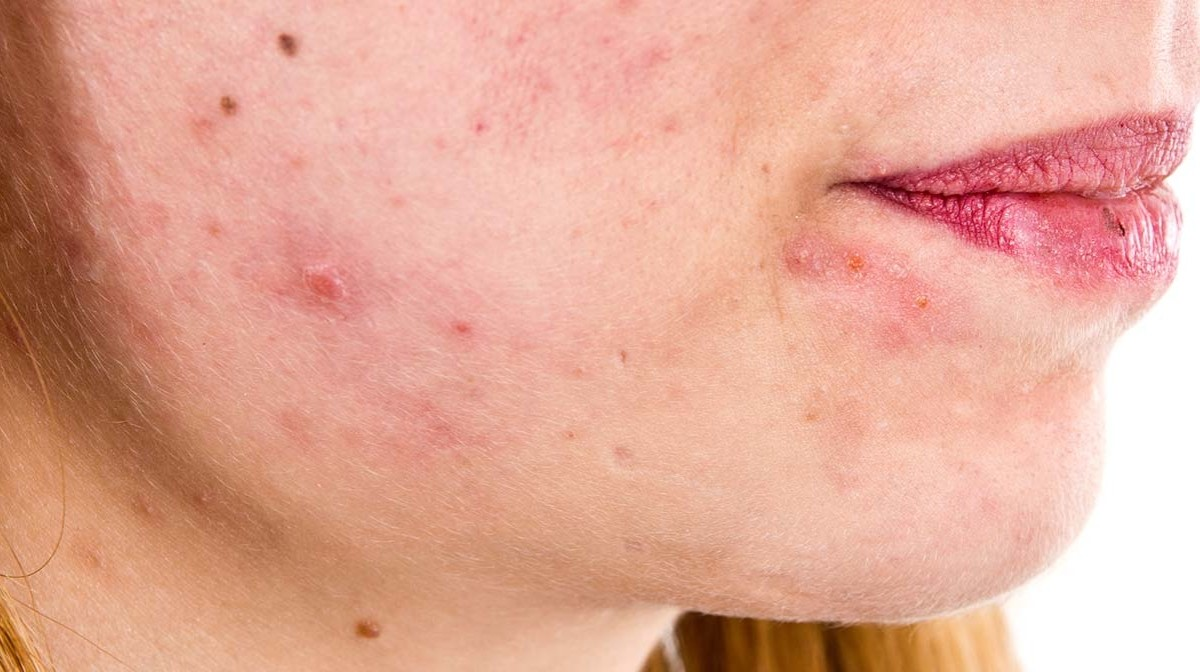 How To Treat Seborrheic Dermatitis On Face Naturally