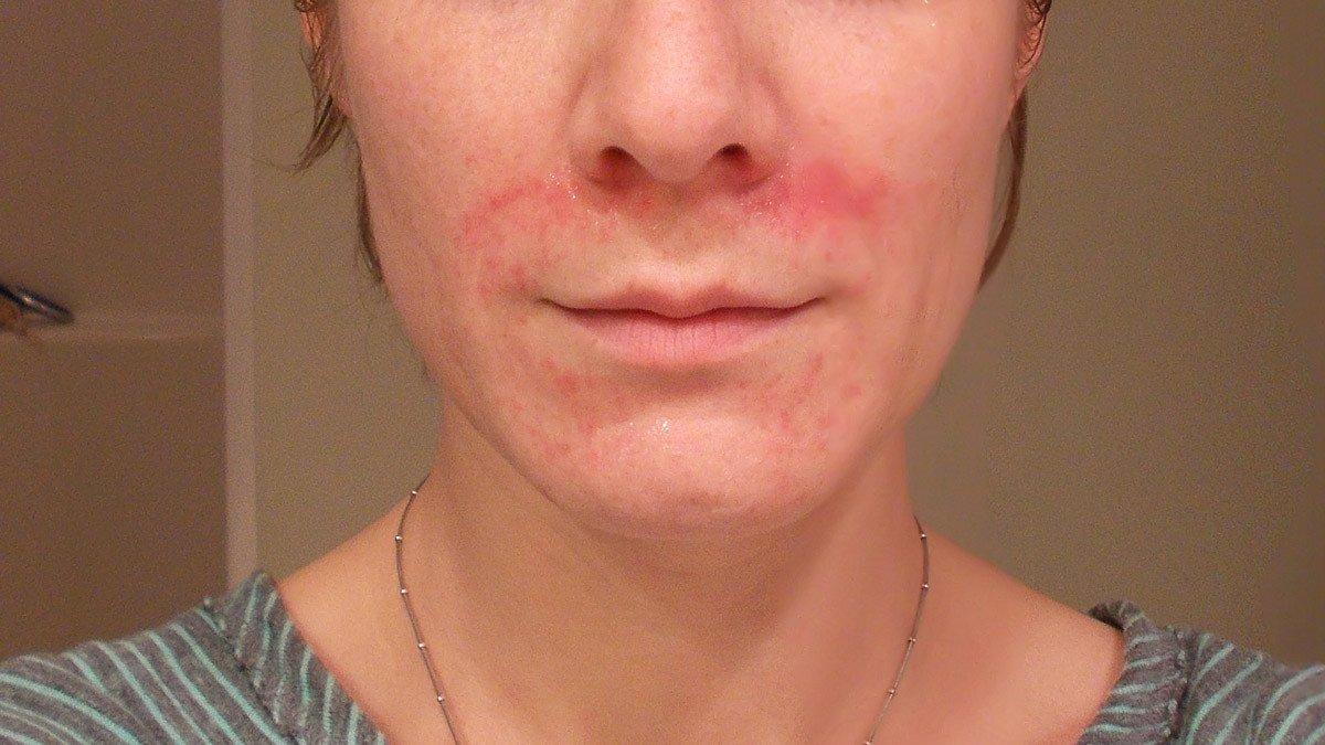 Toothpaste eczema
