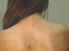 How To Fight Back Acne