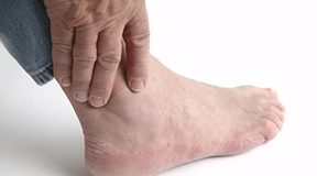 What is Gouty Arthritis