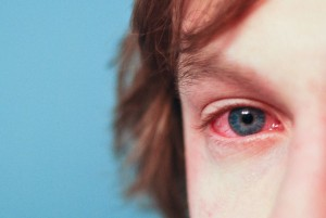 allergies 300x201 - Common Forms of allergies suffering from people
