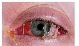 Conjunctivitis commonly called as madras eye or pink eye