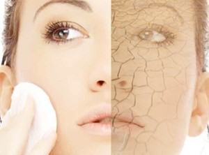 DRY SKIN 300x222 - Dry skin care tips during summer