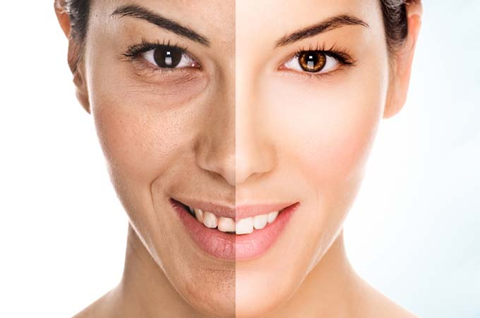 antiaging - Top 10 anti-ageing tips
