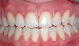 Gingivitis- a common dental disease