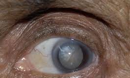Cataract- An eye disorder