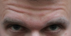 Tips to prevent forehead wrinkles