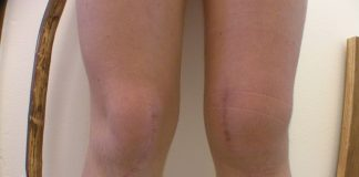 Home remedies for swollen knees