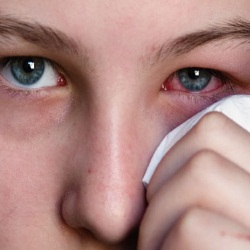 eye problems - Why do Dry eye cases peal in April ?