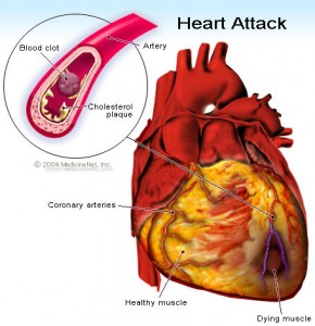 heart attack 290x300 - Early Warning Signs Of Stroke Heart attacks