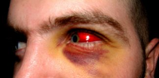 Remedies And Causes of red eyes