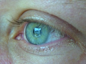 4493254 eae44e502c o 300x225 - Health Risks Of Contact Lenses