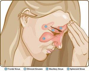 Natural remedy to treat sinusitis