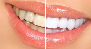 5 Home Remedies for Whiter Teeth 300x164 - How to Get White Teeth Naturally?