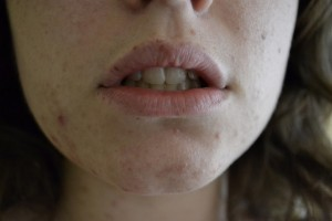 5874188023 ed4b71be19 z 300x200 - 6 Food Tips For Acne