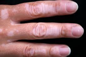 fea4 - Vitiligo - A pigment disorder of skin