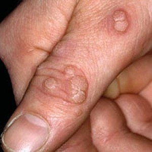 nailclinic warts1 300x300 - Painless ways to remove warts