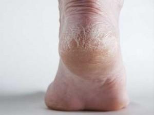 02 foot disease new dry feet sl 300x225 - 5 symptoms Of Diseases Revealed By Feet