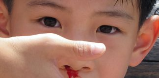 7 Ways To instantly Stop Nose Bleeding