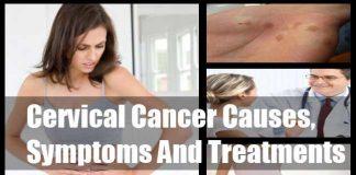 8 symptoms of cervical cancer