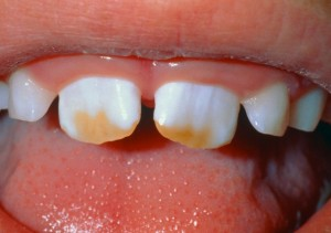 stainedteeth salem or 300x211 - Home Remedies to Fix a Cracked or Broken Tooth