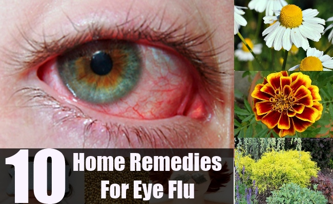 home remedies for eye flu