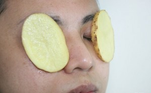 Sliced Potato 300x185 - 10 Effective Home Remedies for Eye Flu