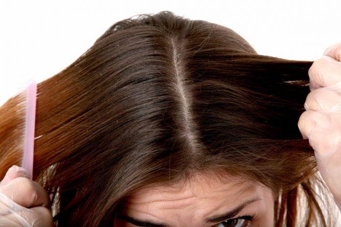 dandruff, skin, how to get rid of dandruff fast, how to get rid of dandruff permanently, what causes dandruff, how to get rid of dandruff in one wash, how to get rid of dandruff overnight, how to get rid of dandruff home remedies, how to get rid of dry scalp, how to get rid of dandruff and hair fall,