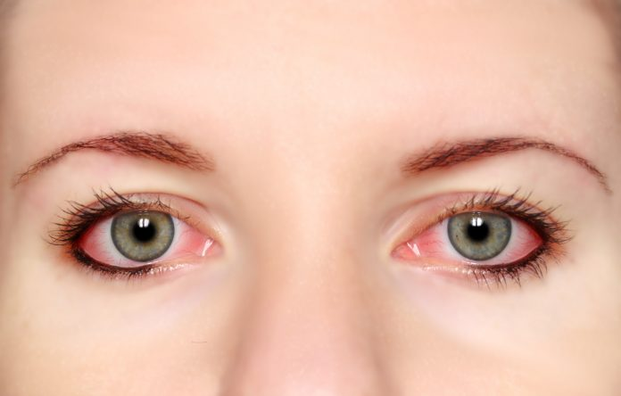 natural ways to soothe tired eyes