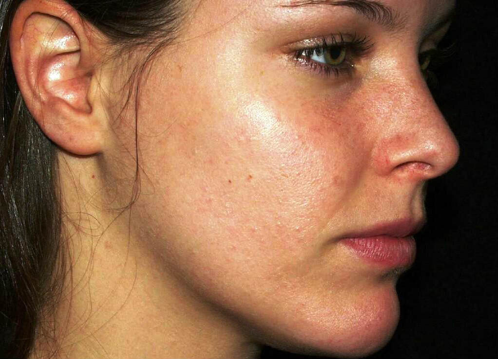 how to close pores on nose after removing blackheads