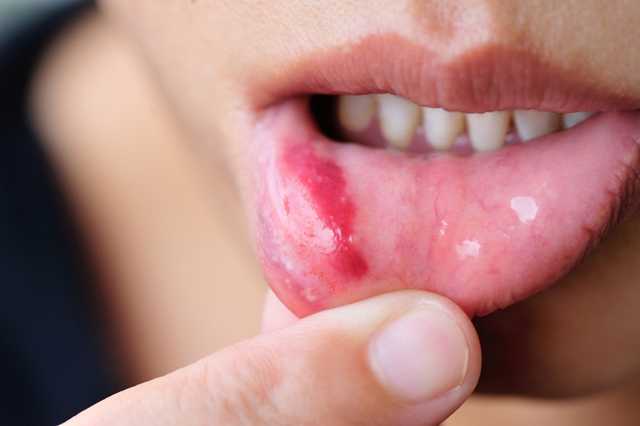 How to Get Rid Of a Pimple on Your Lip