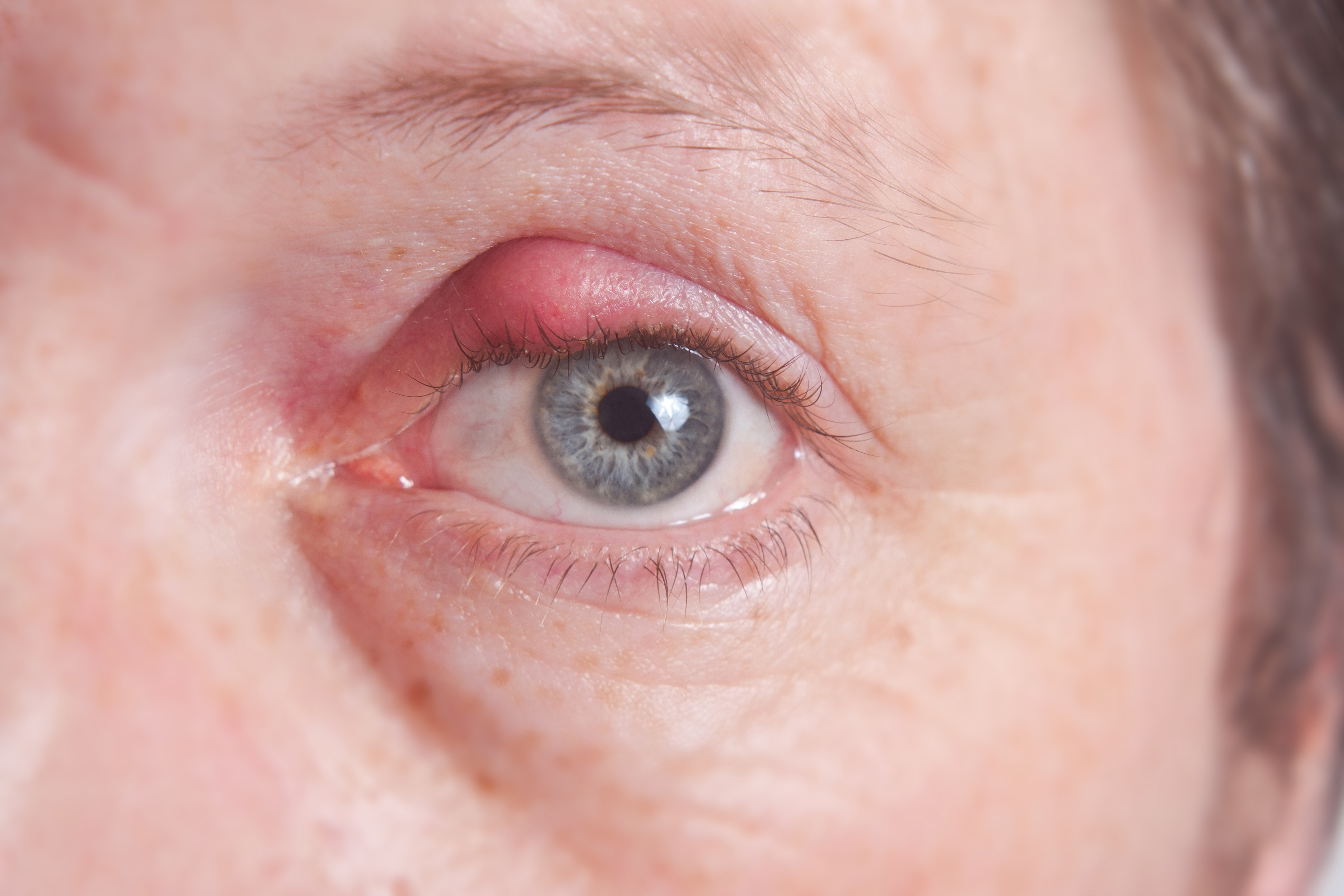 Expert suggested ways to prevent eye pimple or stye