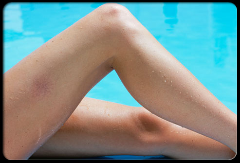 Five steps to hide Varicose Veins
