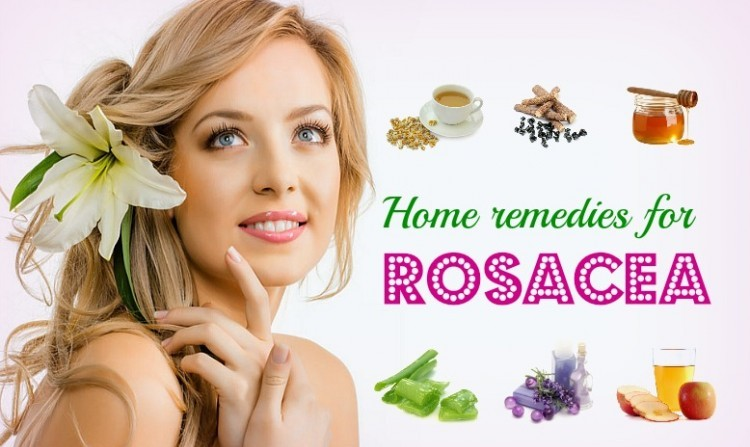 home remedies for rosacea 750x480 - 10 Best natural home remedies for rosacea