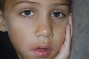 Home Remedies To Cure Fever