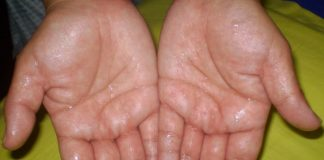 8 Best Home Remedies For Sweaty Hands
