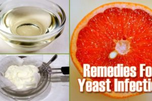 Natural remedies for Fungal Infections