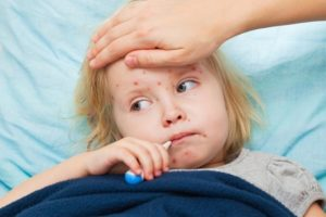 Natural Home Remedies For Measles
