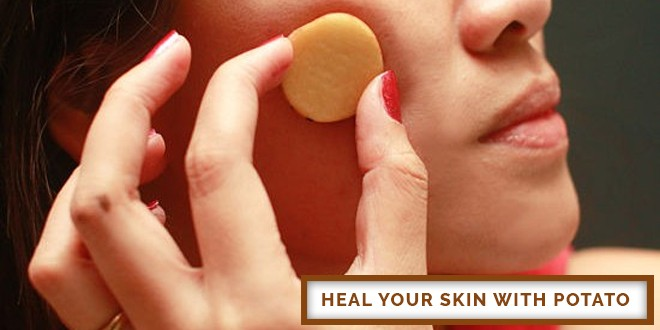 Heal Your Skin With Potato