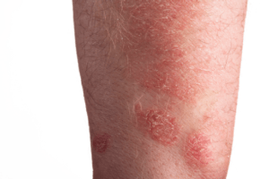 779442 300x200 - Different types of skin diseases