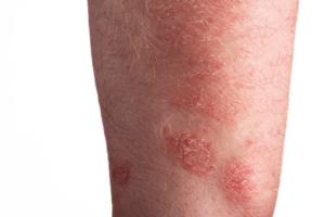 Different Types Of Skin Diseases Yabibo