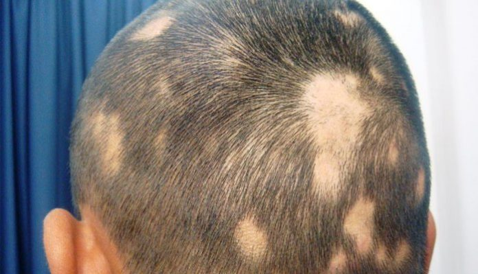causes of white hair patches