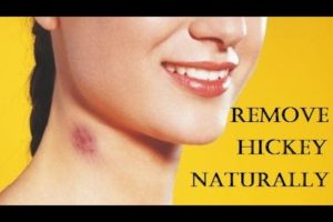 Best 8 home remedies to Get Rid of Hickeys Fast