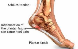 plantarfascia 56a8f35b5f9b58b7d0f6a7cc 300x188 - Best Home Remedies for Heel Spurs