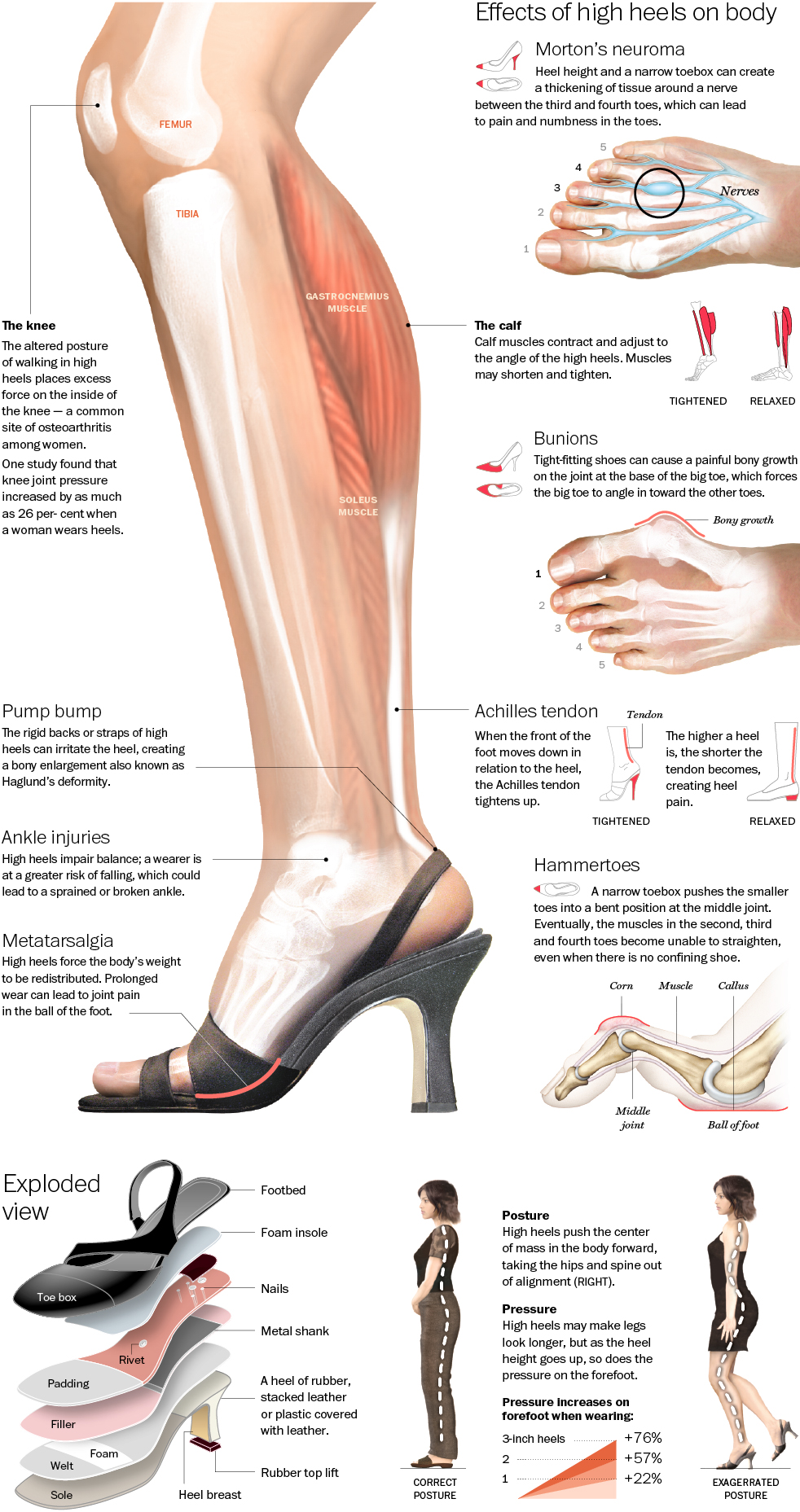 high heels - Crucial Effects Of High Heels On Body