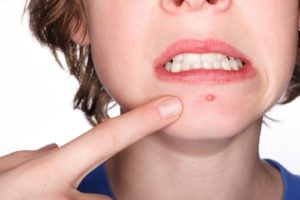 how to get rid of acne 300x200 - What Position of Acne tell about your Health Condition?