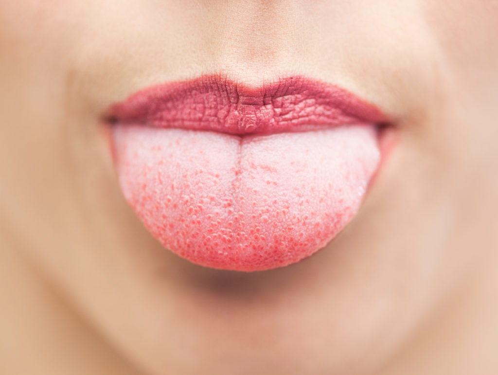 tongue 0 1024x771 - Causes And How To Treat Cut On Tongue ?