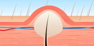 Methods To Cure Ingrown Hair