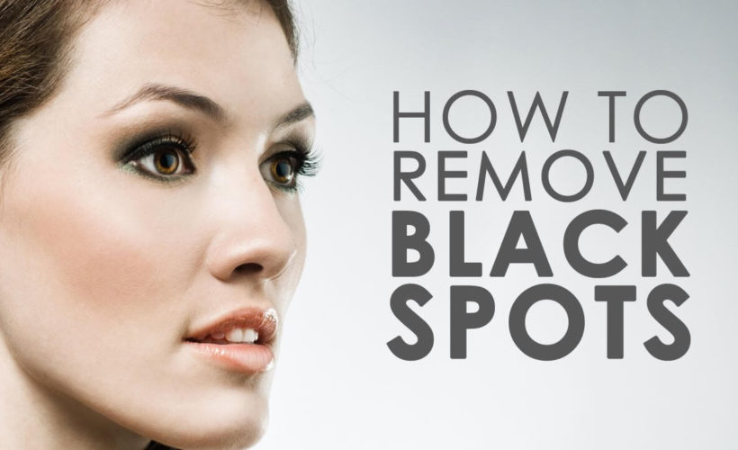 How to get rid of brown spots on the skin